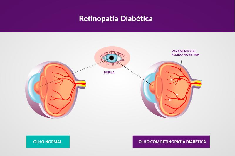 figura representativa da retinoplastia diabética. Dois olhos, um normal e um com a doença.