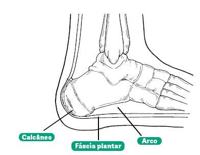 anatomia de um pé com o calcânio, a fáscia plantar e o arco indicados cada um por uma linha preta e um retângulos verdes de bordas arredondadas com seus respectivos nomes. Fonte: Genetizx / CC BY-SA (https://creativecommons.org/licenses/by-sa/4.0) https://commons.wikimedia.org/wiki/File:Pedheelpainsp1.jpg