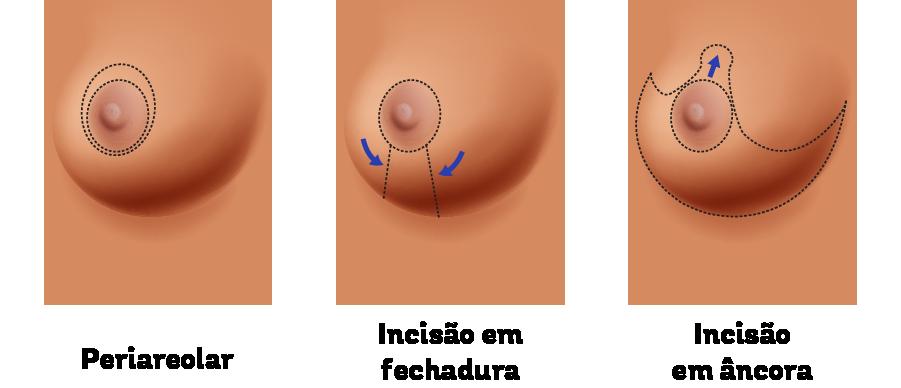 Figura que representa 3 tipos de incisões no peito da mulher, a periareolar, a incisão em fechadura e a incisão em âncora. Elas são feitas no procedimento de mamoplastia redutora.