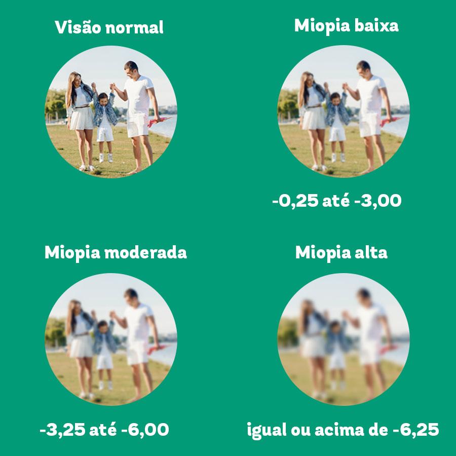 Sob um fundo verde, 4 círculos representam a progressão da miopia. No primeiro, a foto de uma família ao ar livre está toda focada o que representa a visão normal. No segundo, a família está um pouco desfocada o que representa a miopia baixa que vai de 0,25 até 3,00 graus. No terceiro, a família está um pouco mais desfocada o que representa a miopia moderada que vai de 3,25 até 6,00 graus. E, por fim, no quarto, a família está bastante desfocada o que representa a miopia alta que vai de 6,25 graus pra cima.