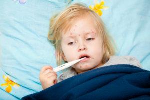 Criança com sarampo deitada na cama com termômetro