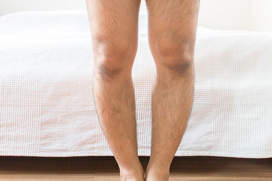 Detalhe de perna de homem com joelho valgo em frente a sua cama