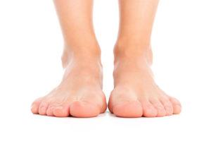 Close de dois pés de uma pessoa que tem o pé chato