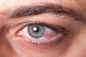Close de um olho vermelho por causa de uveíte