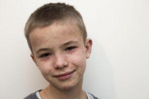 Retrato do rosto de um menino que está com manchas vermelhas por causa da doença mão-pé-boca