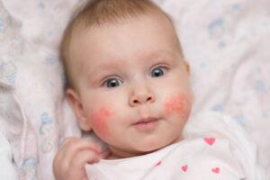 Bebê com manchas vermelhas nas bochechas, características do eritema infeccioso.