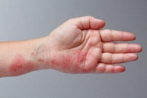 Mão de uma criança com manchas vermelhas causadas pela da doença mão-pé~boca.